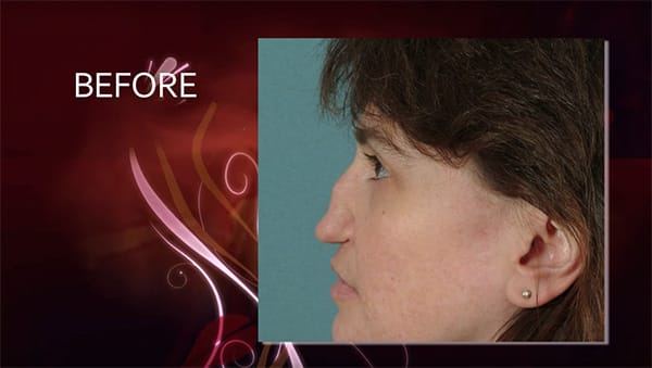 Video Gallery, Denver Plastic Surgery