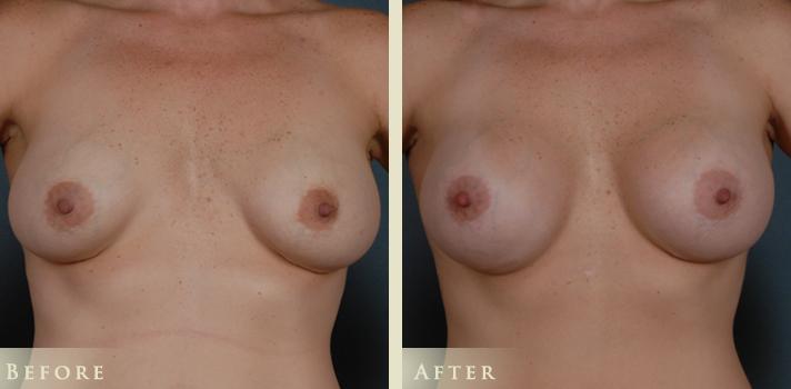 Breast Implant Revision Surgery Denver, Colorado