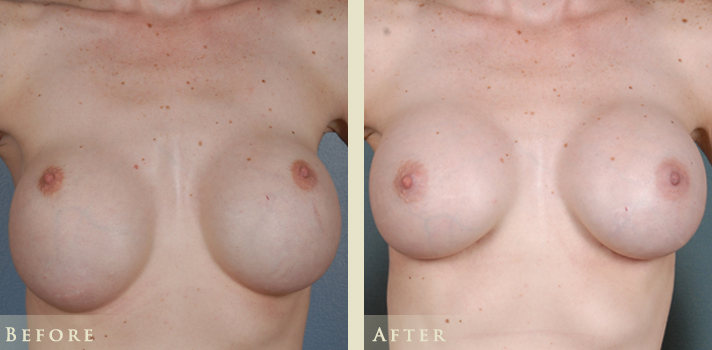 Bottoming Out Breast Implant Revision Denver, Colorado