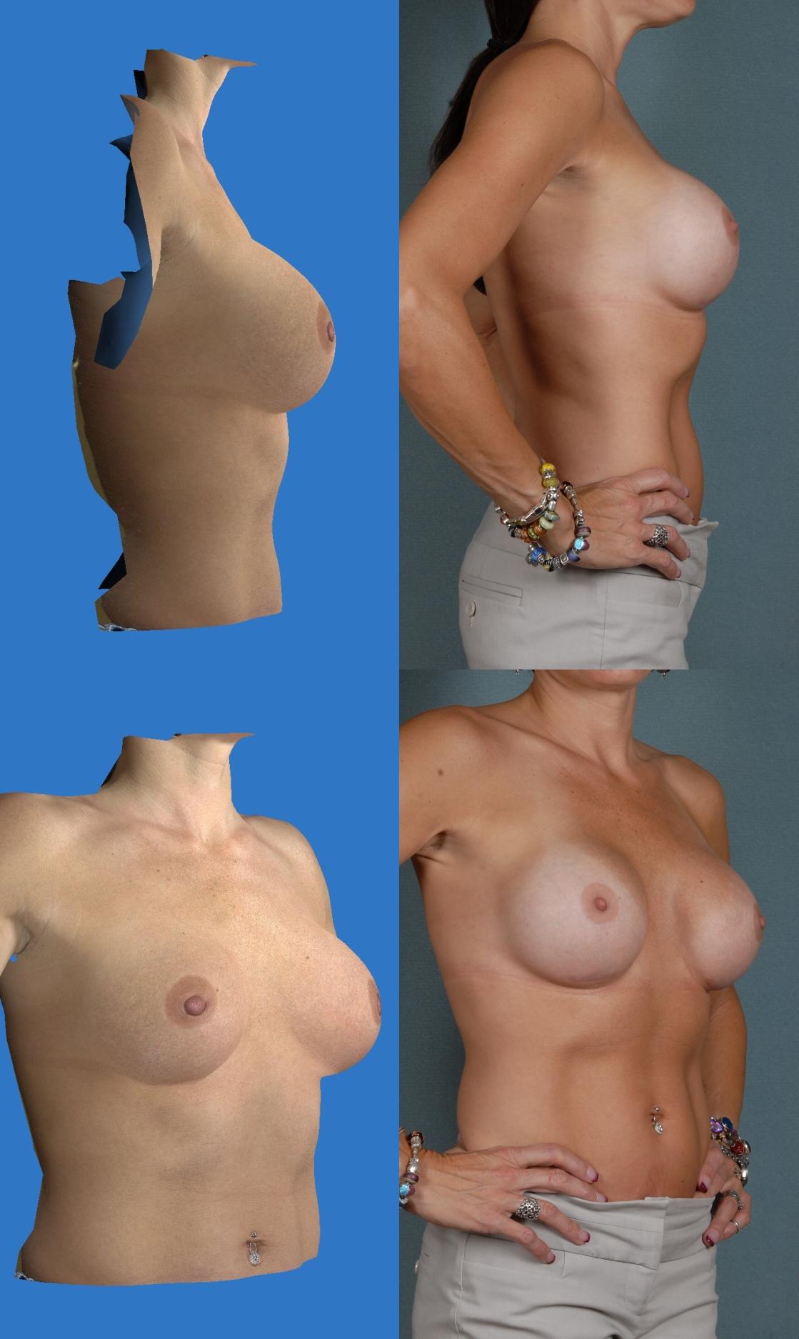 Denver-breast-augmentation-photos_3d