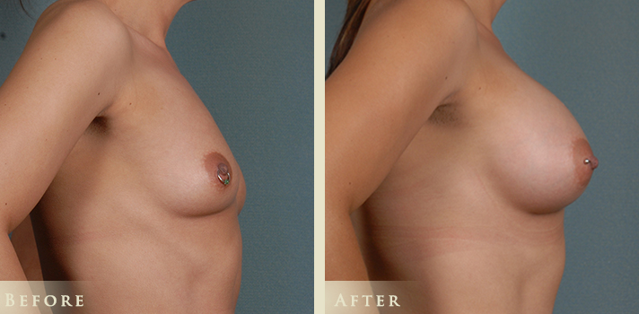 Denver Breast Augmentation patient with 410 silicone implants