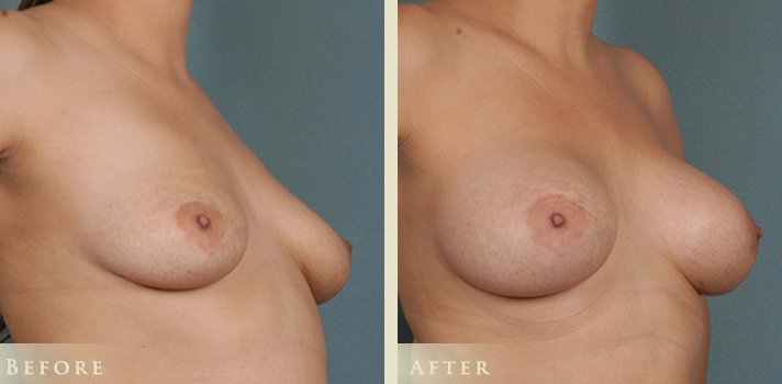 410 Silicone Implant Before and After Photo Denver, Colorado