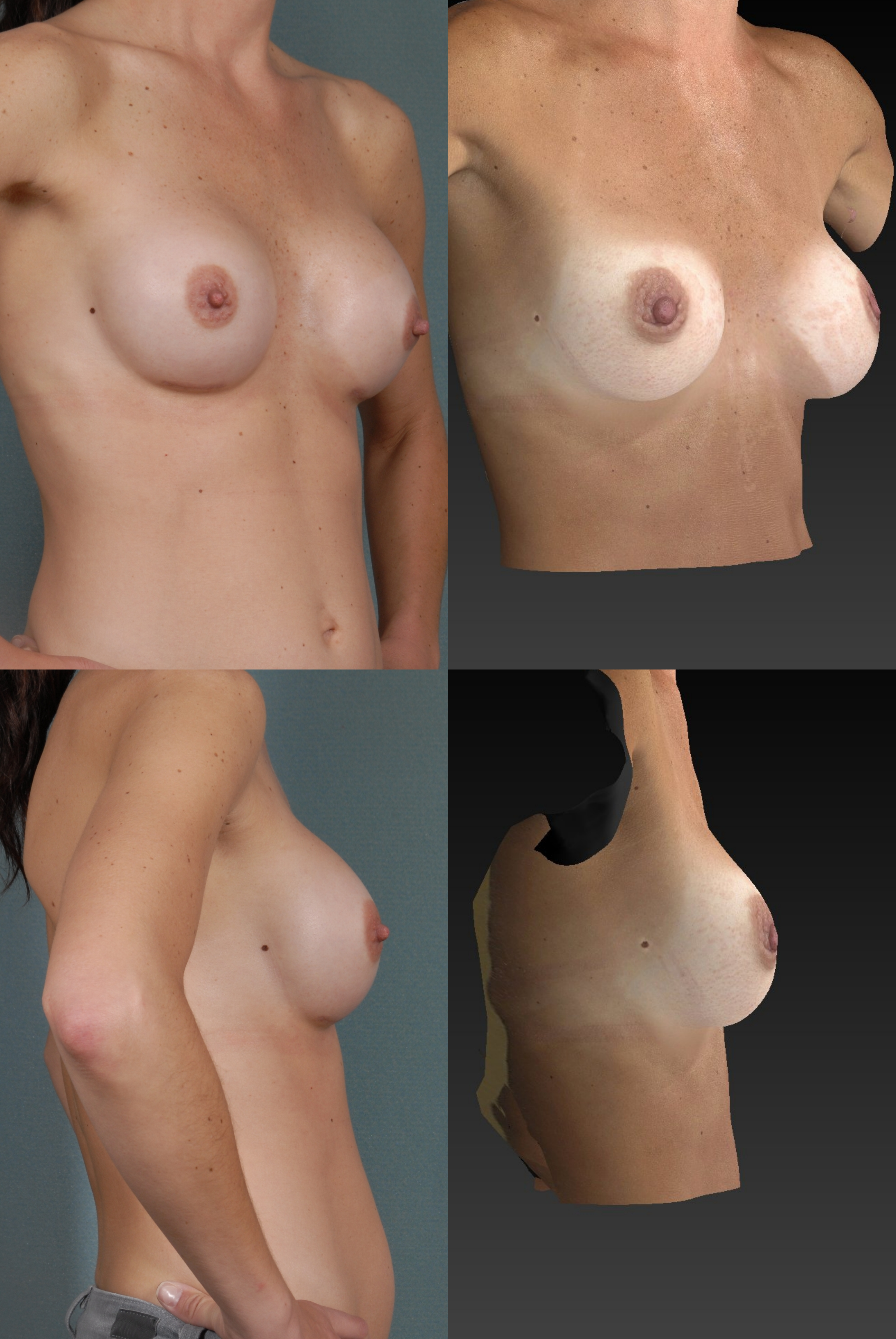 Denver breast augmentation 3D photo simulation