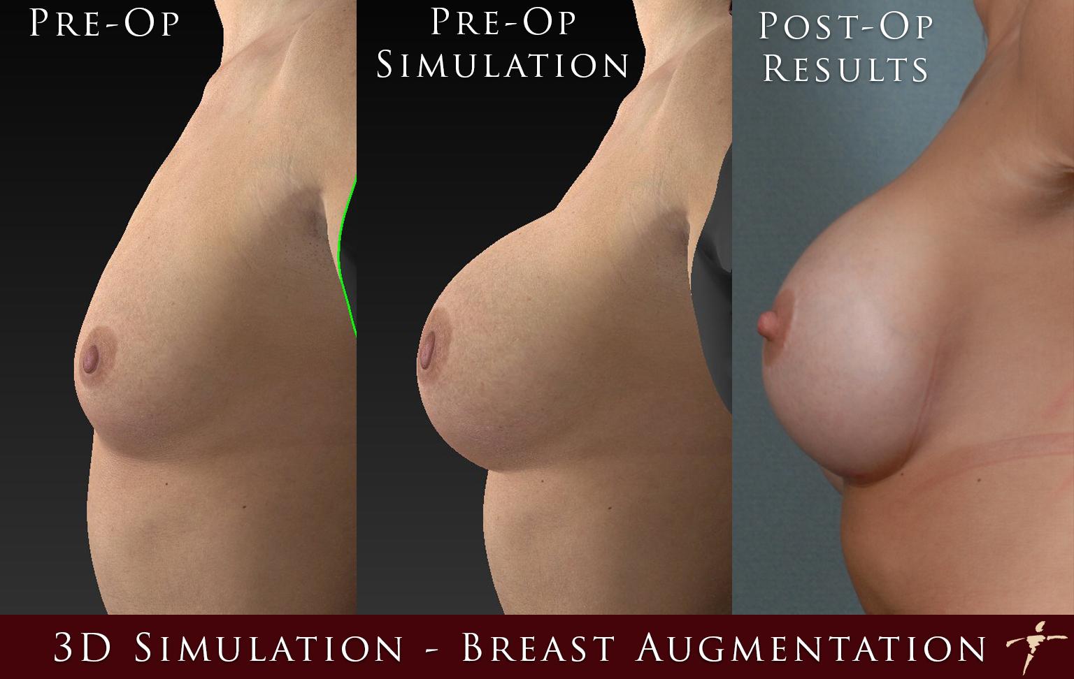 3D Simulation_pre_sim_post