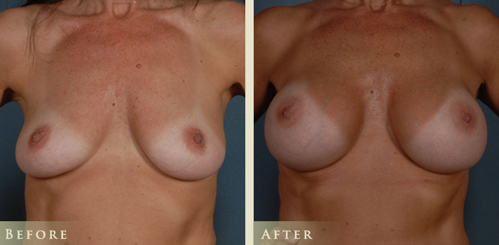 Breast-Augmentation-UU-FRONT