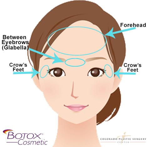 Botox_TreatmentAreas