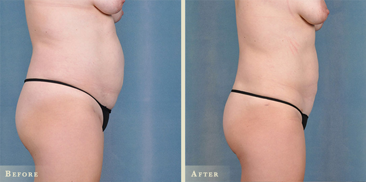Female Liposuction Before And After Colorado Plastic Surgery