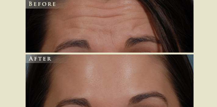 Botox Fillers Before and After | Colorado Plastic Surgery